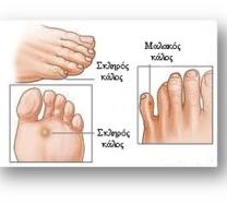Αποτέλεσμα εικόνας για διατηρήσετε την υγεία των ποδιών σας